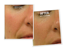 HydraFacial Before and After 3