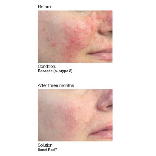 PCA Skin 6