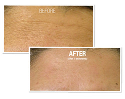 HydraFacial Before and After 4