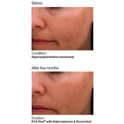 PCA Skin 2