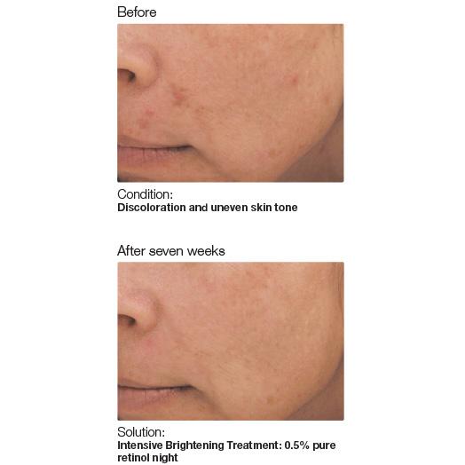 PCA Skin 3