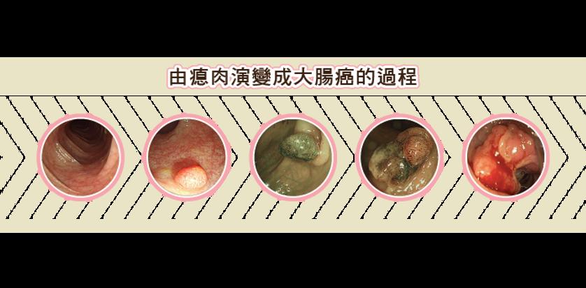 cancer-change-01-01.png