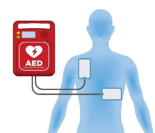 Automated External Defibrillators (AEDs)
