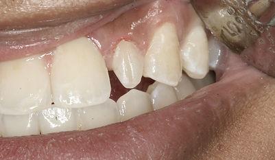 incisor 1.jpg