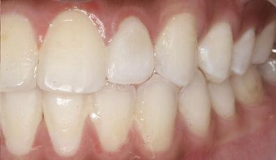 incisor 2.jpg