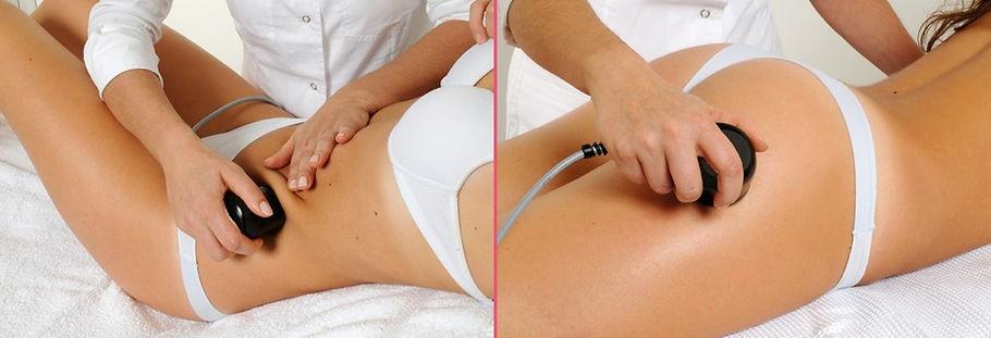 ultrasonic lipo