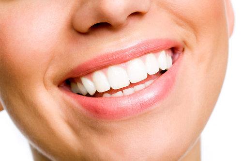 60-Minute Teeth Whitening Treatment