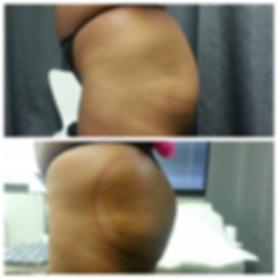 booty fx,butt vacuum,butt enhancement,no surgery,bootylicious,bigger butt,ass,butt enlargement,bbl,houston,Butt lift,brazilian butt lift,booty for days,body fx ,body fx houston