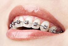 clinica-equilibre-odontologia-no-centro-