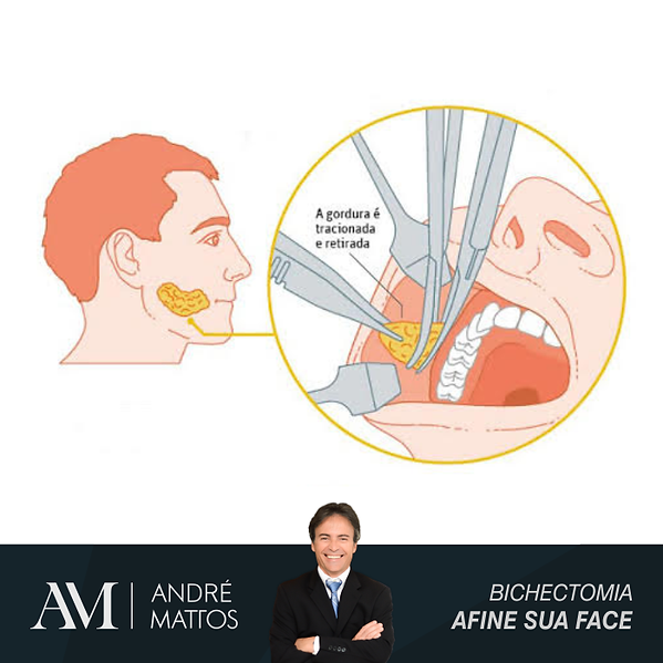 bichectomia-plastica-bochecha.png