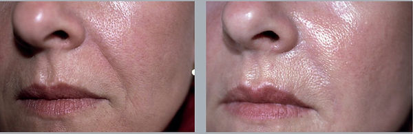 Before-After-Hyacorp-Face-Nasolabial-002