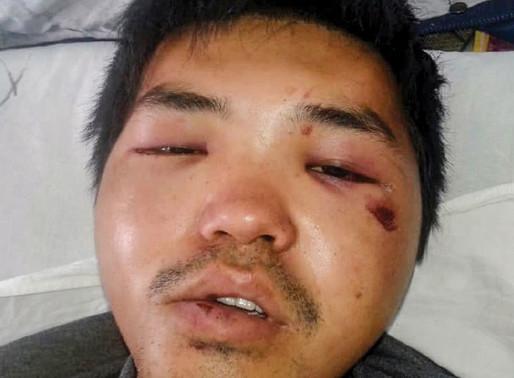 Kyrgyzstan: Young Man Severely Beaten for Christian Faith