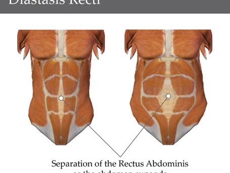 Postpartum Diastsis Recti Update
