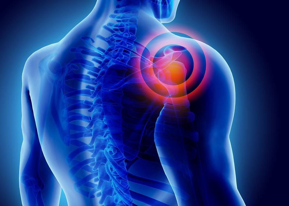 illustration of shoulder joint pain