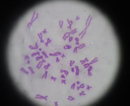 Visualização do cariótipo corado com Giemsa, ao microscópio óptico.