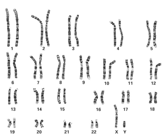 Cromossomos corados pela técnica de bandeamento de alta resolução.
