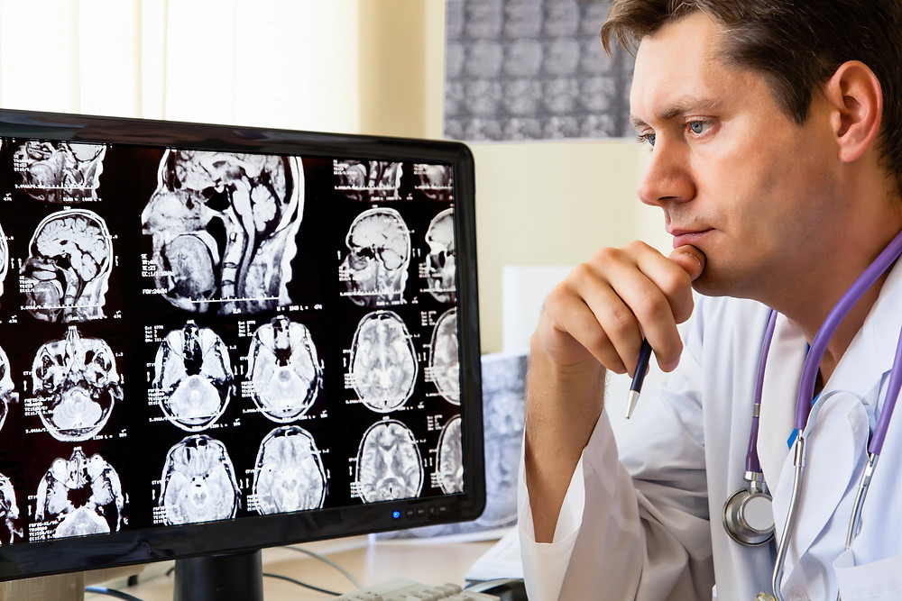 Image of a doctor looking at a brain scan