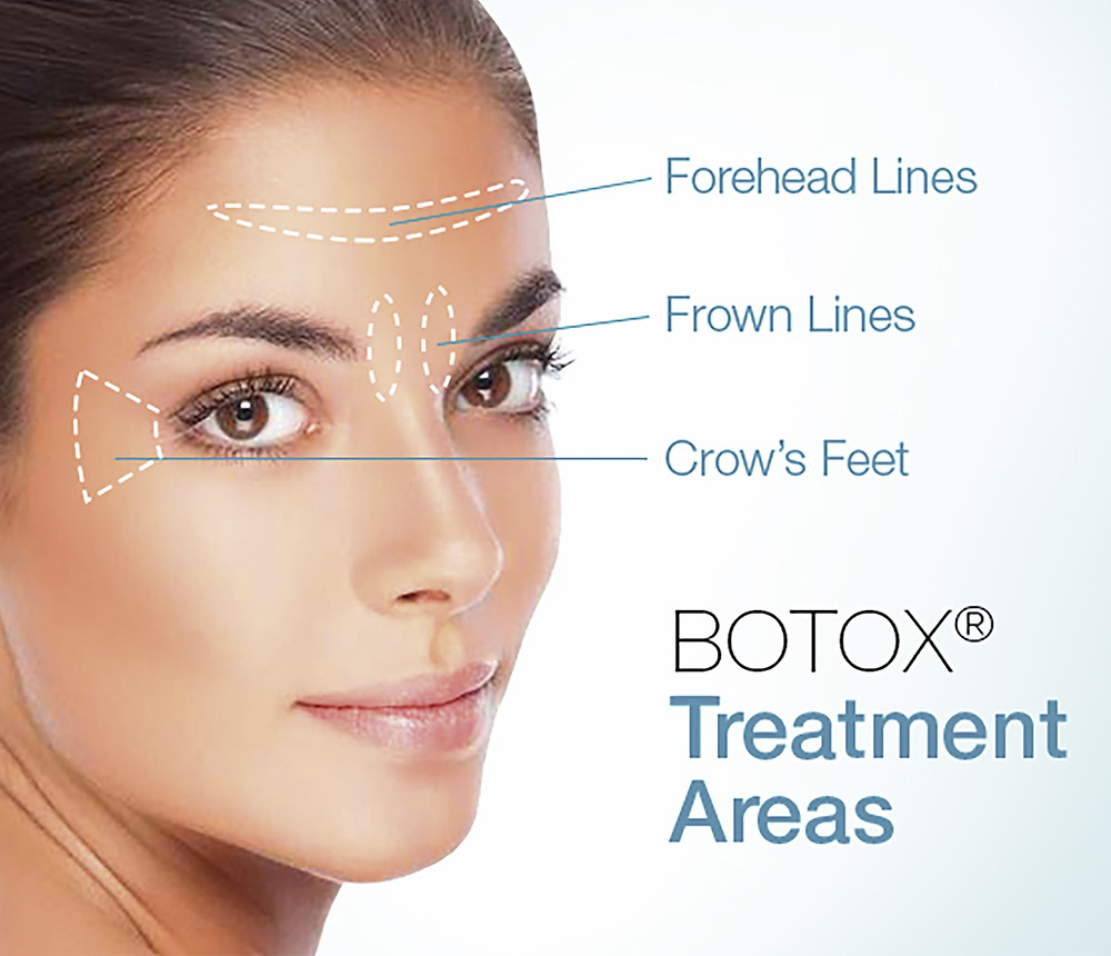 At White Smiles General Dentistry in Pensacola Botox is placed in the forehead, between eyes and on the side of the eyes