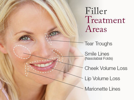 Find your youthful look again with Dermal Fillers