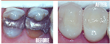 Tooth Crown Procedure