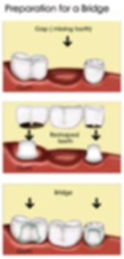 Tooth Bridge