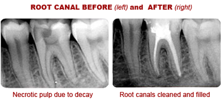 Root Canal: Before and After