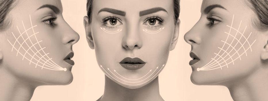 Lifting Facial - Dr. Daniel Machado - Cirurgia Plástica em Aracaju