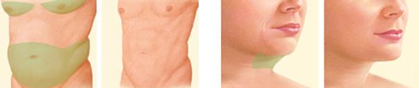 Lipoaspiração - Lipoescultura - Dr. Daniel Machado - Cirurgia Plástica em Aracaju