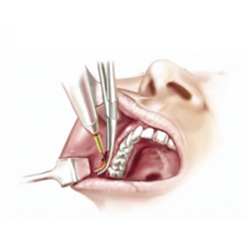 Bichectomia - Dr. Daniel Machado - Cirurgia Plástica em Aracaju