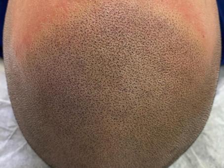 Mikropigmentacija lasišča