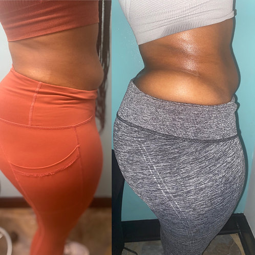 Body Contouring Course without Kit
