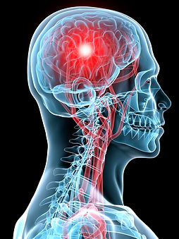 Concussion Clinic.jpg