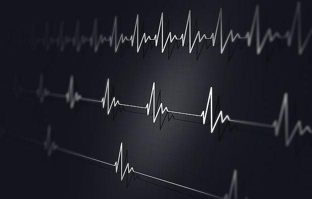 bigstock-Different-Heart-Beats-Illustra-