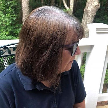 Picture of Susan post chemo.JPG