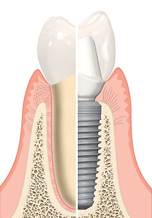 Very strong and durable dental implant