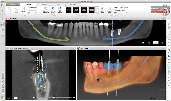 Advanced dentistry computer guided dental implat placemen