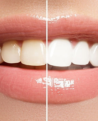 How-Many-Teeth-Whitening-Sessions-Do-You