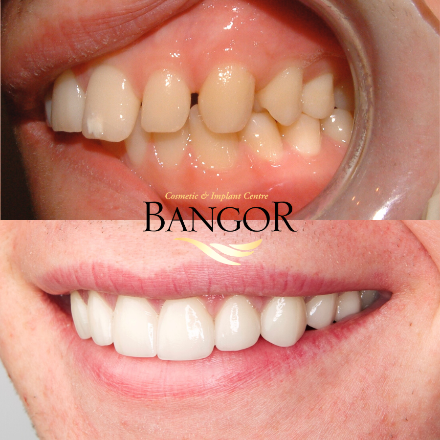 Dental Veneers Side View