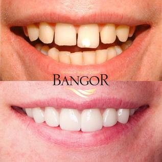 Before & After Dental Veneers 2.png