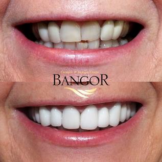 Copy of Copy of Before & After Dental Ve