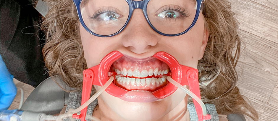 Why I Got Braces as an Adult + Advice