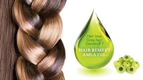 Hair loss? Grey hair? Dandruff? Try Amla Oil.