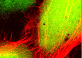 U-2OS cells labeled with calcein AM (green) and lifeact-mCherry (red)