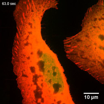 Cells under sudden hyperosmotic shock display vacuole-like deformations. Vinculin (red) and calcein (green)