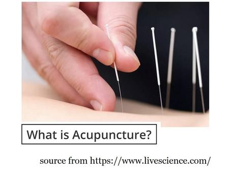 針灸 Acupuncture.