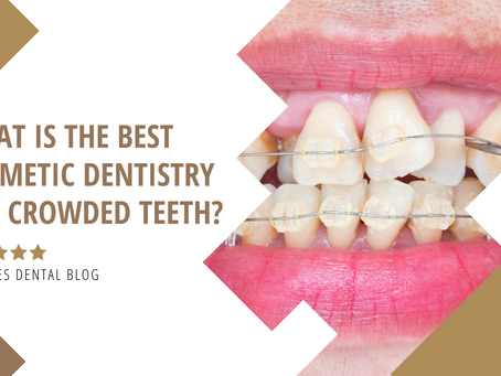 What Is The Best Cosmetic Dentistry For Crowded Teeth?