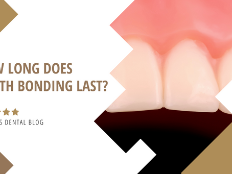 How Long Does Tooth Bonding Last?