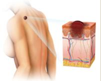 skin cancer,melanoma,mole,skin exam,cross section of mole,dermatology,dermatologist,abilene,skin care,clinic