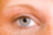 freckles,dermatology,dermatologist,abilene,skin care,clinic