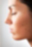 melanoma, melasma, skin darkening,moles,skin cancer,dark lesion,dermatology,dermatologist,abilene,skin care,clinic